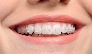 şeffaf diş teli