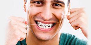 Porselen Diş Teli Fiyatları ve Avantajları