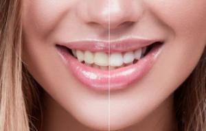 diş taşı nedir diş taşı nasıl oluşur?