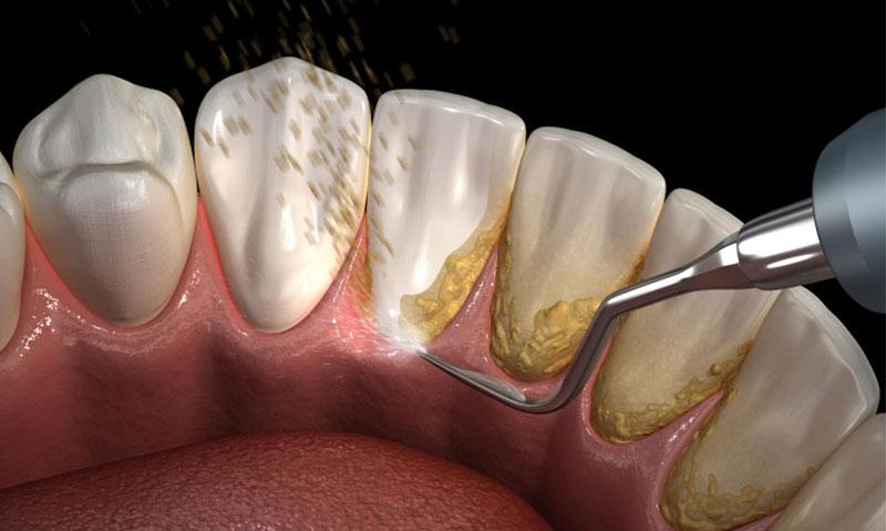 diş taşı temizliği 1