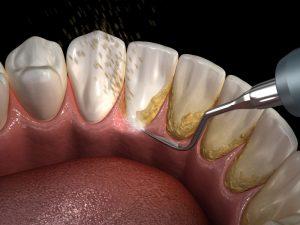 Diş Taşı Nedir ve Diş Taşı Nasıl Oluşur?
