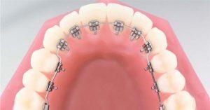 görünmez diş teli