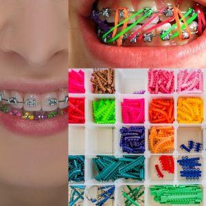 renkli diş teli çeşitleri