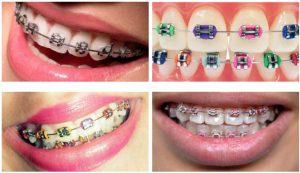 renkli diş teli fiyatları