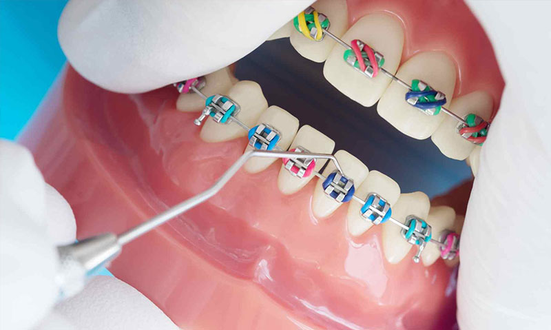 renkli-diş-teli