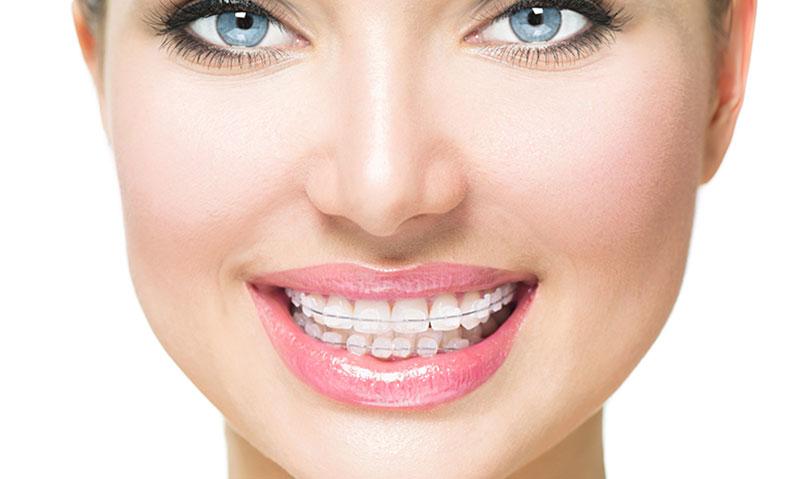 Diş Teli Hakkında Merak Edilenler