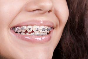 Diş Teli Takılması Ne Kadar Sürer