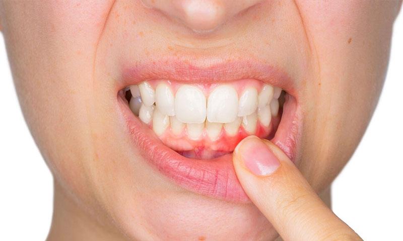 Diş Eti İltihabı Nedir? Diş Eti İltihabına Ne İyi Gelir? | Periodent