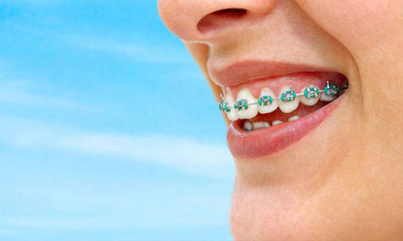 diş teli çeşitleri 1