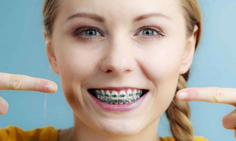 diş teli aşamaları 1
