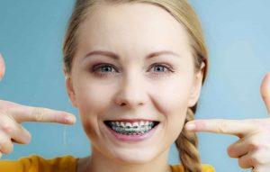 diş teli aşamaları