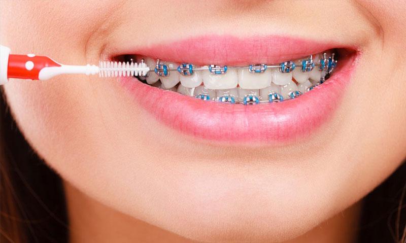 diş teli fiyatlari