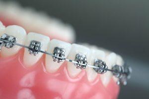 diş teli ne zaman takılır