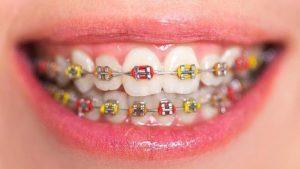 diş-teli-tedavi-süreci