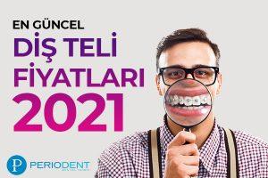 diş teli fiyatları 2021
