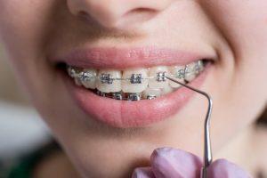 Diş Teli Tedavisi Ne Kadar Sürer?