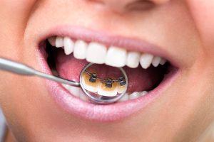lingual ortodonti görünmez diş teli fiyatları