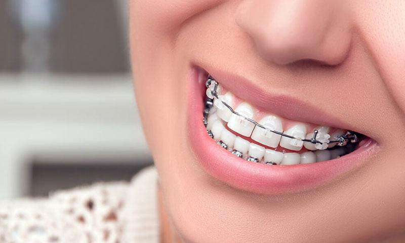 ortodonti nedir 2