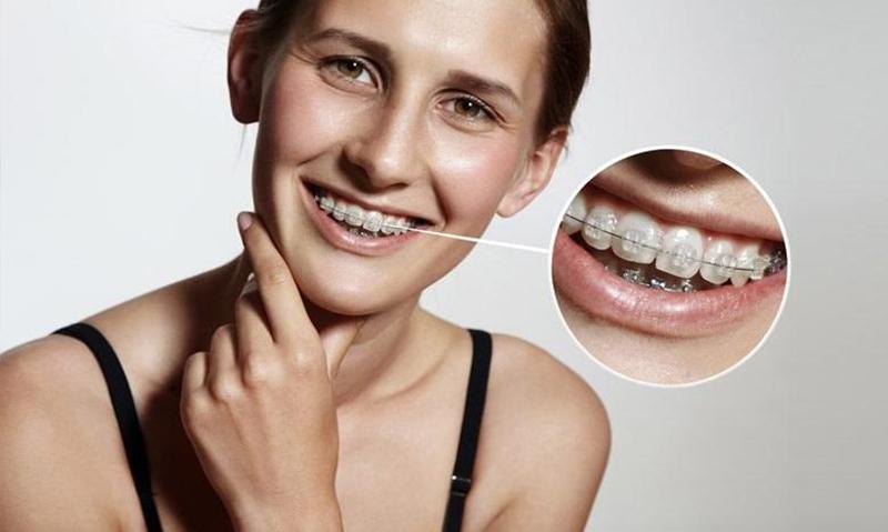 ortodonti nedir ortodonti ne demek 1