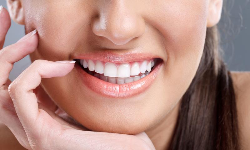 Diş Beyazlatma Tedavisi