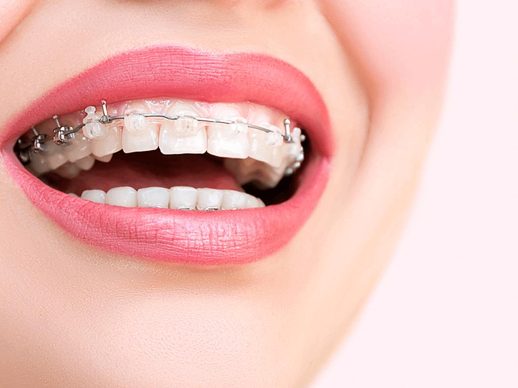 Diş Teli Takılanlar Nelere Dikkat Etmelidir