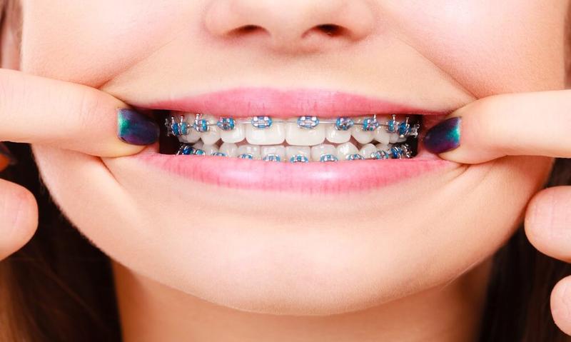 Diş Teli Tedavisi Nedir Pahalı mıdır