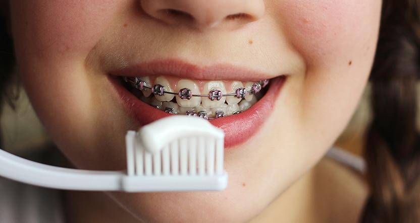 diş teli bakımı
