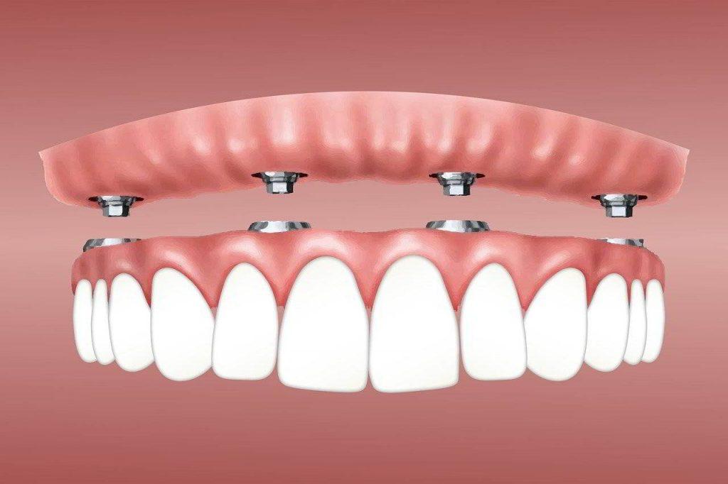 Implant Bakimi