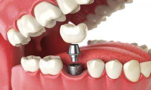 Vidalı Diş Nedir? Nasıl Yapılır?