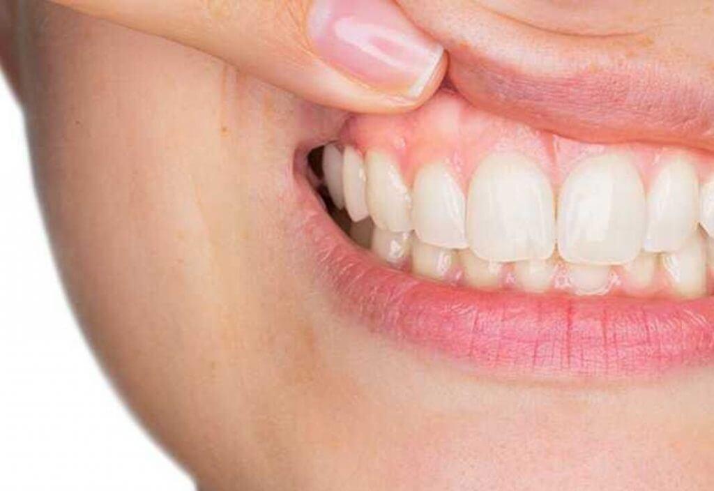 Diş Eti İltihabı Nasıl Geçer?