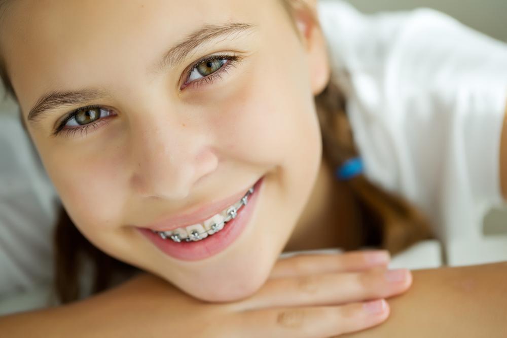 Diş Teli Ne Kadar Süre Takılır?