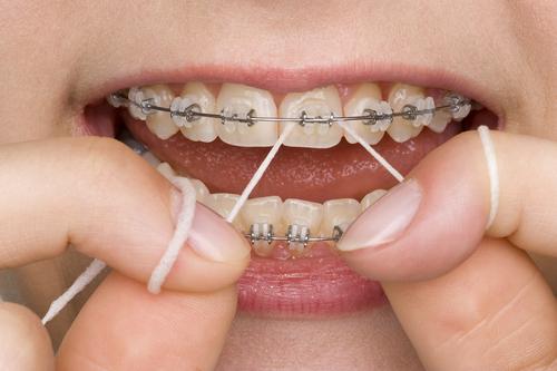 diş teli temizliği nasıl yapılır