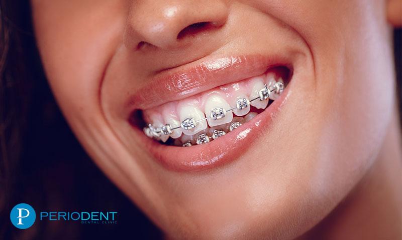 ortodonti nedir