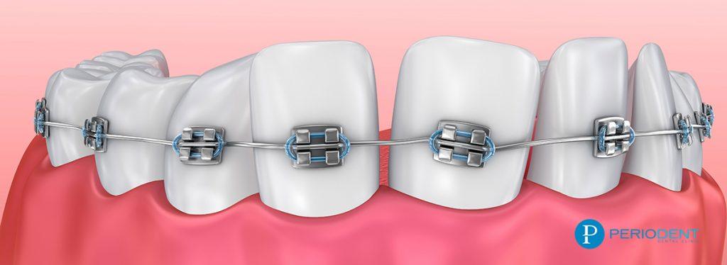 ortodonti tedavisi 1