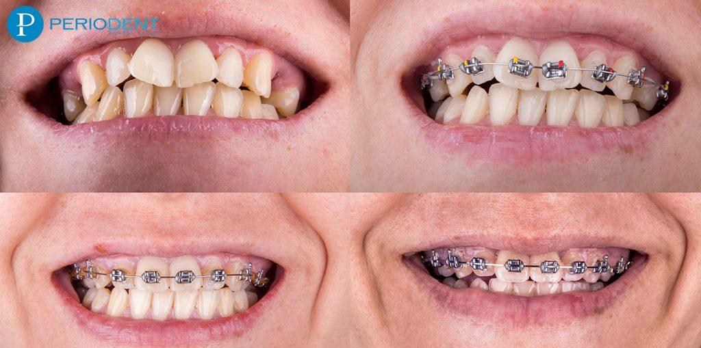 ortodonti-tedavisi-asamalari