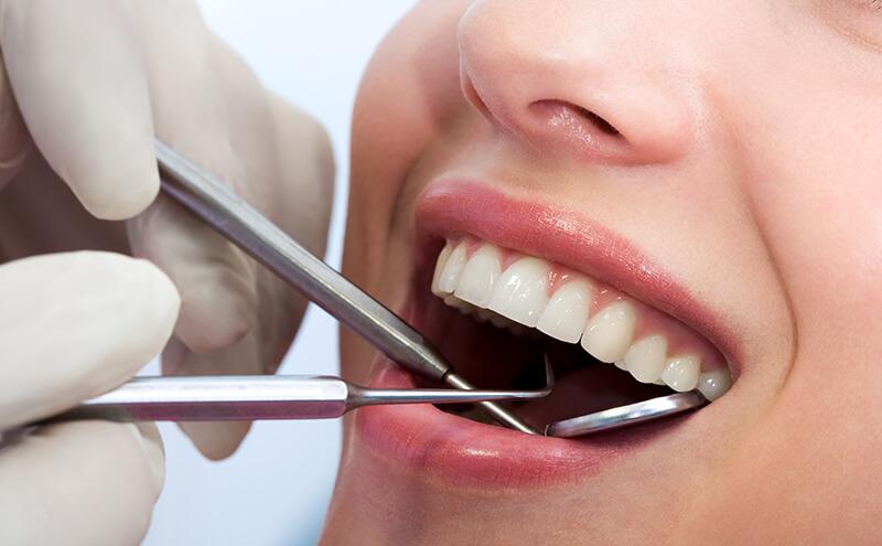 bonding diş