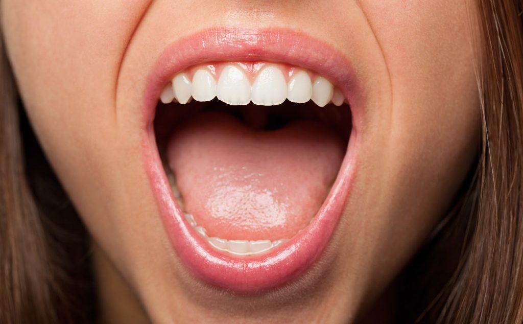 Diş Eti Çekilmesi Tedavisi Nasıl Yapılır?