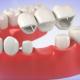 köprü diş nasıl yapılır