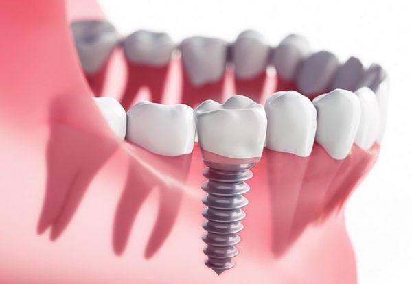 implant sonrası ağrı