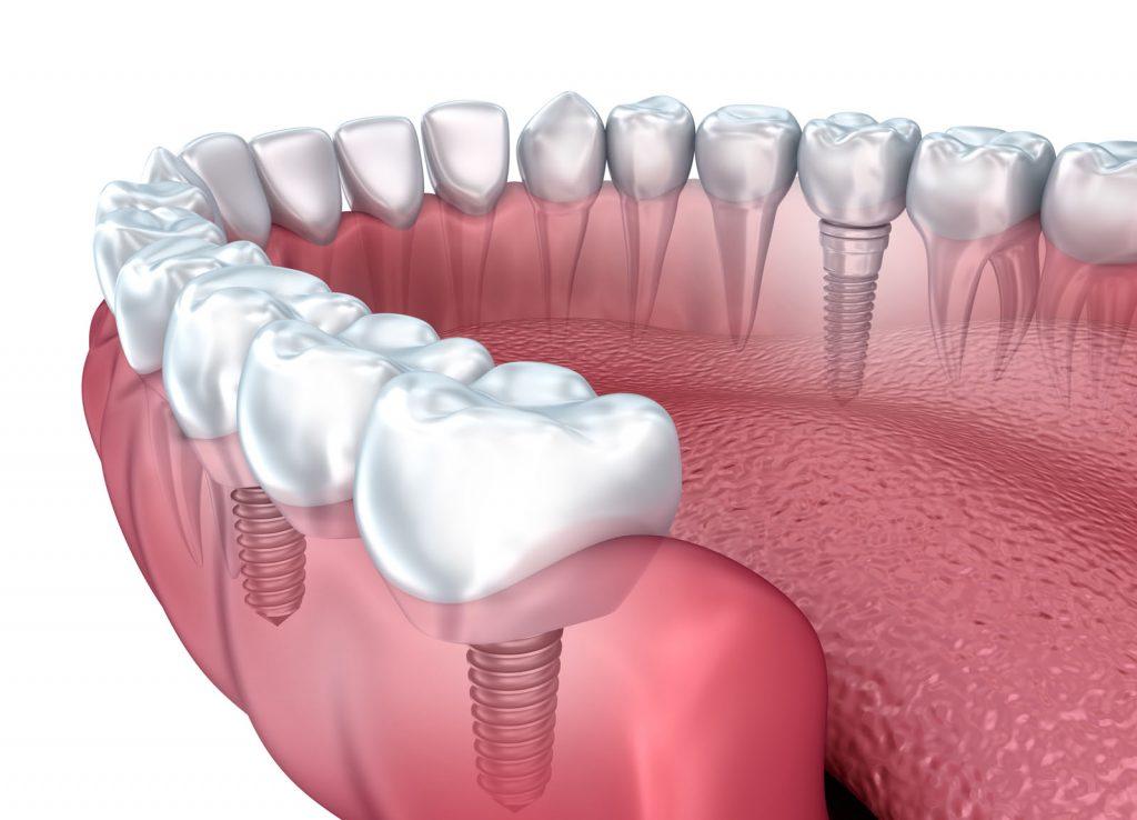 implant ne kadar sürer