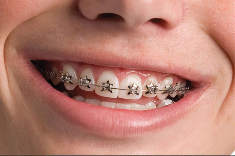 Ortodontik Tedavi Nedir?