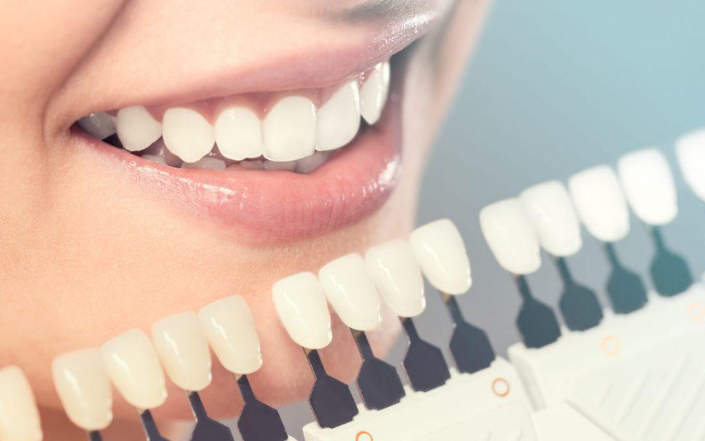 Porselen Diş Kaplama Nasıl Yapılır?