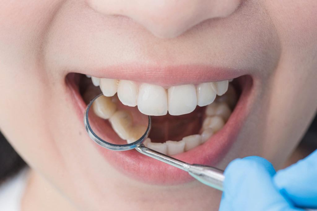yirmilik diş çekimi