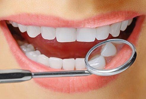 Diş Beyazlatma Hakkında Bilmeniz Gerekenler