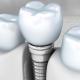 dis implantlar