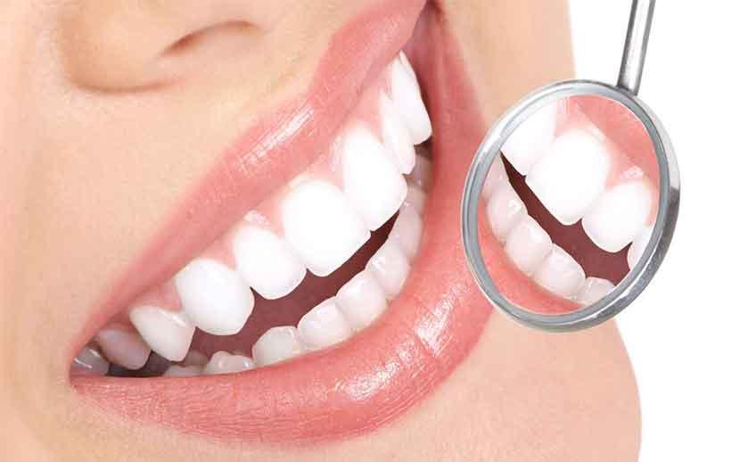 Diş Tedavi Yöntemleri