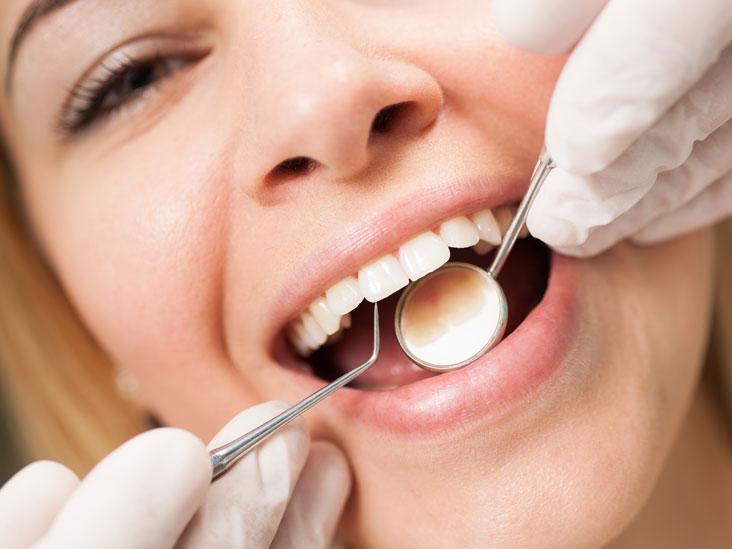 Diş Temizleme Nasıl Yapılır?