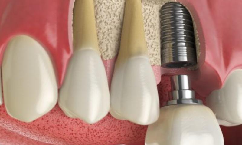 implant dis