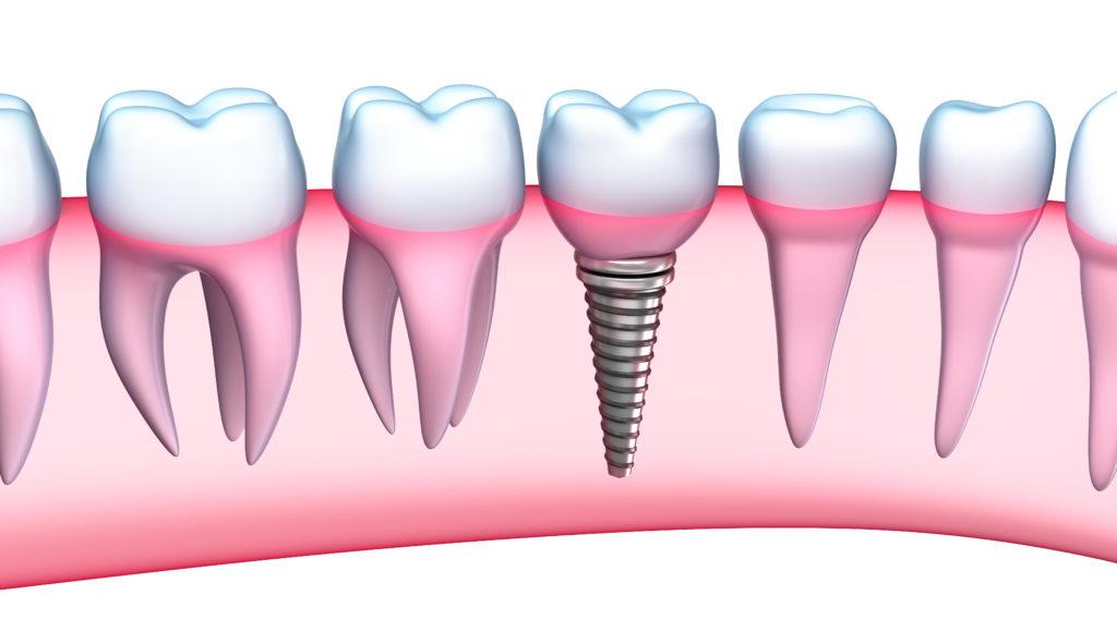 İmplant Diş Avantaj ve Dezavantajları