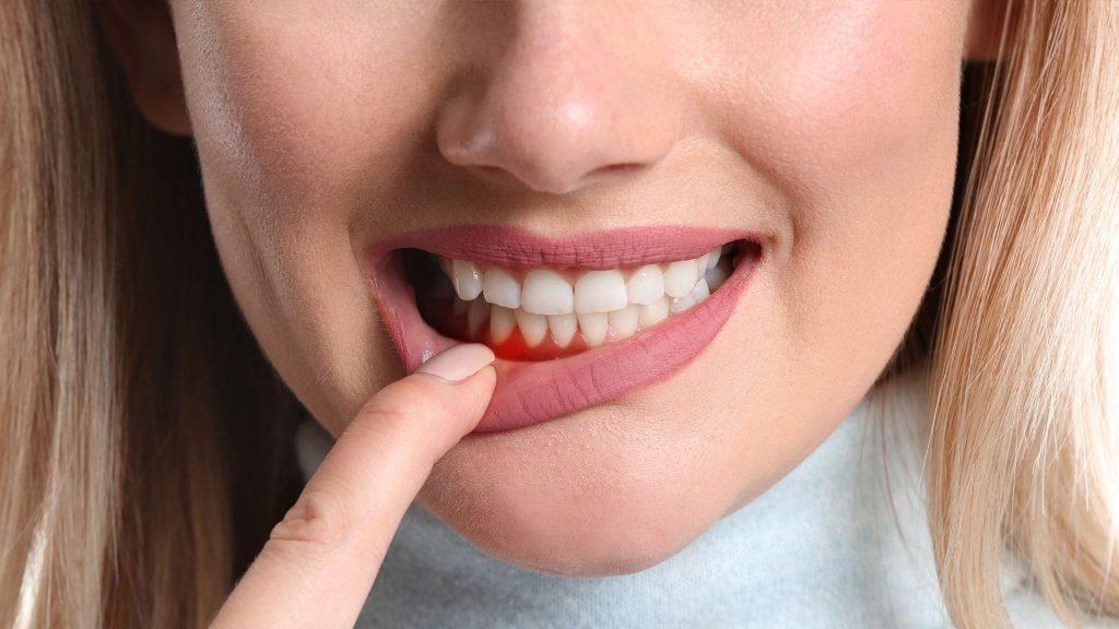 Diş Eti Hastalıkları Nasıl Anlaşılır?